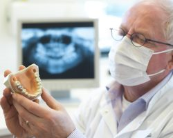 dental implants costs